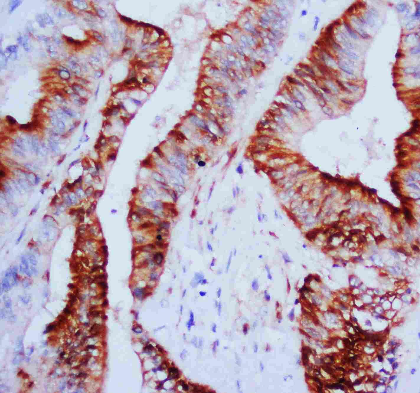 Anti-MAPK1/3 Antibody PA1049