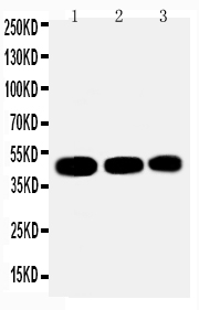 Anti-Ihh/Indian Hedgehog Antibody PA2225