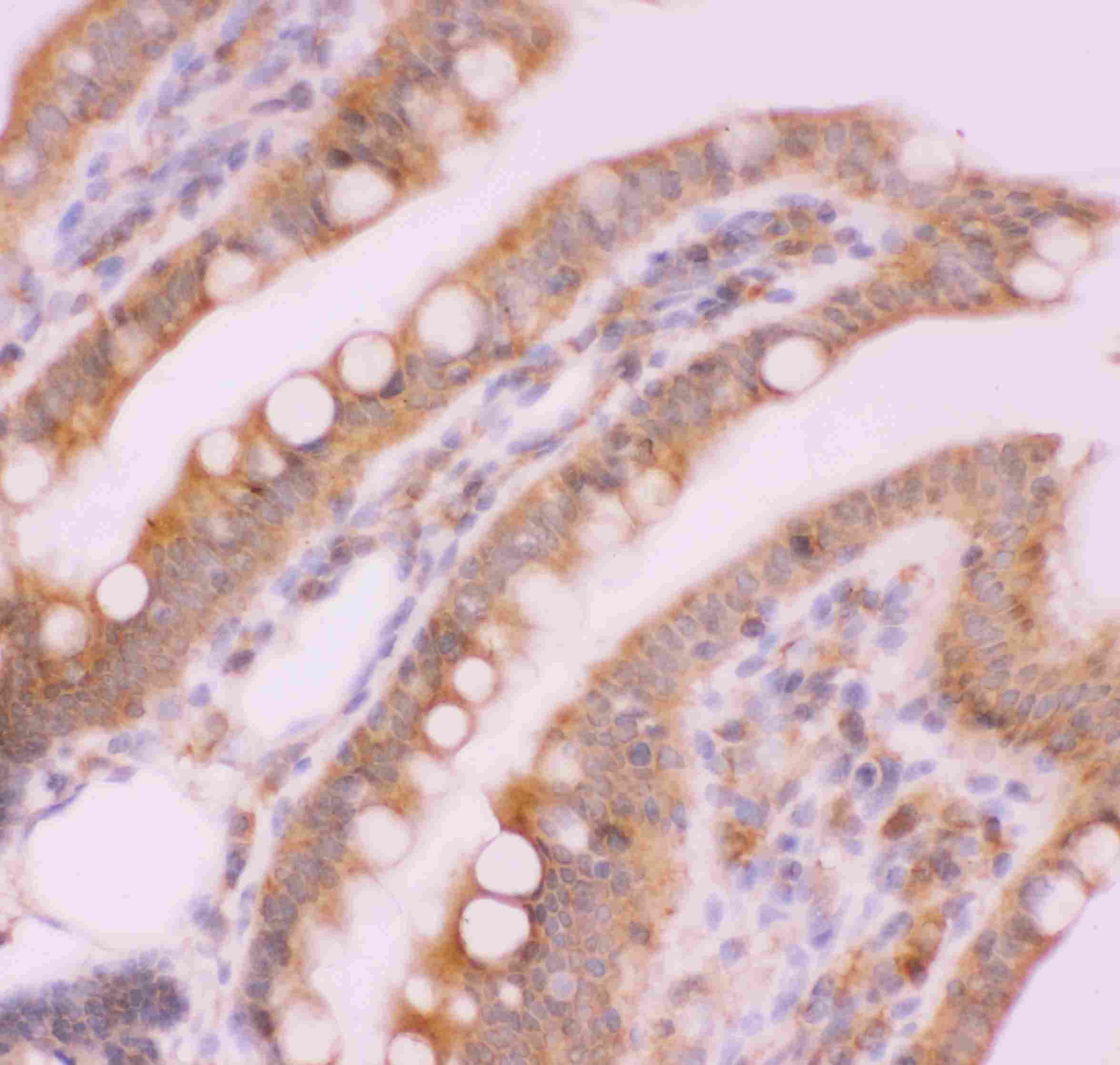 Anti-NFkB p100/p52 Picoband™ Antibody PB9150