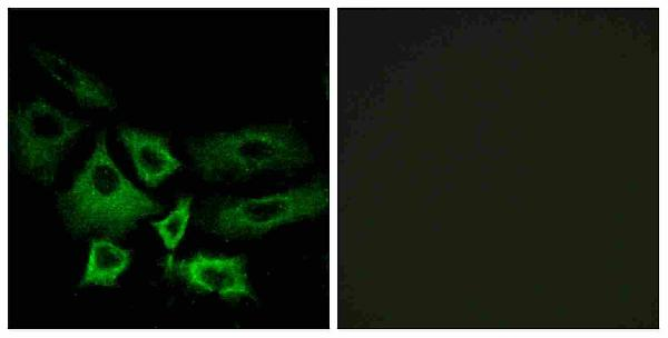 Immunofluorescence analysis of A549 cells, using NT5C1A Antibody. The picture on the right is blocked with the synthesized peptide.