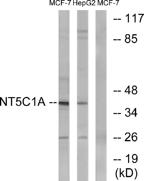 Western blot analysis of lysates from MCF-7 and HepG2 cells, using NT5C1A Antibody. The lane on the right is blocked with the synthesized peptide.