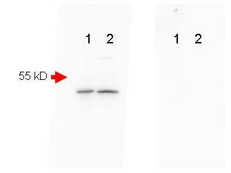 Western blot analysis of Beta Amyloid expression in mouse brain extract (lane 1) and mouse spinal chord (lane 2). A 40-50 kDa band consistent with a higher MW precursor form of beta amyloid was detected using rabbit anti-Beta Amyloid affinity purified polyclonal antibody (Catalog # A00081-2) at 1:1000. A secondary Ab only control (Shown right) showed no detectable signal.