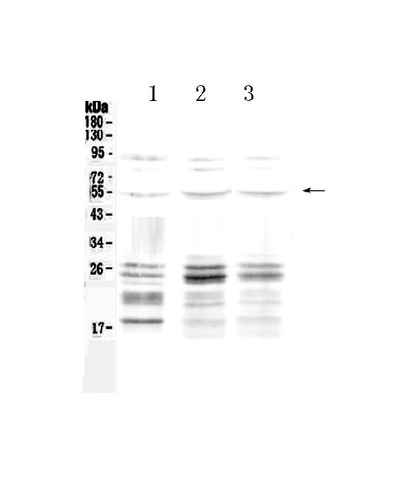 <b>Figure 1. Western blot analysis of PTEN using anti-PTEN antibody (A00006-1).  </b><br>Electrophoresis was performed on a 5-20% SDS-PAGE gel at 70V (Stacking gel) / 90V (Resolving gel) for 2-3 hours. The sample well of each lane was loaded with 50ug of sample under reducing conditions.  <br>Lane 1: rat brain tissue lysate,<br>Lane 2: mouse liver tissue lysate,<br>Lane 3: human A549 whole cell lysate.  <br>After Electrophoresis, proteins were transferred to a Nitrocellulose membrane at 150mA for 50-90 minutes. Blocked the membrane with 5% Non-fat Milk/ TBS for 1.5 hour at RT. The membrane was incubated with rabbit anti-PTEN antigen affinity purified polyclonal antibody (Catalog # A00006-1) at 0.5 μg/mL overnight at 4°C, then washed with TBS-0.1%Tween 3 times with 5 minutes each and probed with a goat anti-rabbit IgG-HRP secondary antibody at a dilution of 1:10000 for 1.5 hour at RT. The signal is developed using an Enhanced Chemiluminescent detection (ECL) kit (Catalog # EK1002) with Tanon 5200 system. A specific band was detected for PTEN at approximately 54KD. The expected band size for PTEN is at 47KD.