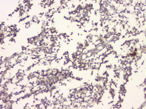 Figure 2. IHC analysis of C99 using anti-C99 antibody (A00081-3).<br>C99 was detected in paraffin-embedded section of human glioma tissue. Heat mediated antigen retrieval was performed in citrate buffer (pH6, epitope retrieval solution) for 20 mins. The tissue section was blocked with 10% goat serum. The tissue section was then incubated with 1μg/ml rabbit anti-C99 Antibody (A00081-3) overnight at 4°C. Biotinylated goat anti-rabbit IgG was used as secondary antibody and incubated for 30 minutes at 37°C. The tissue section was developed using Strepavidin-Biotin-Complex (SABC)(Catalog # SA1022) with DAB as the chromogen. <br>