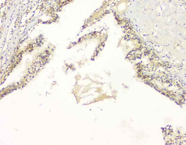 Figure 4. IHC analysis of C99 using anti-C99 antibody (A00081-3). <br>C99 was detected in paraffin-embedded section of human renal cancer tissue. Heat mediated antigen retrieval was performed in citrate buffer (pH6, epitope retrieval solution) for 20 mins. The tissue section was blocked with 10% goat serum. The tissue section was then incubated with 1μg/ml rabbit anti-C99 Antibody (A00081-3) overnight at 4°C. Biotinylated goat anti-rabbit IgG was used as secondary antibody and incubated for 30 minutes at 37°C. The tissue section was developed using Strepavidin-Biotin-Complex (SABC)(Catalog # SA1022) with DAB as the chromogen.  <br>