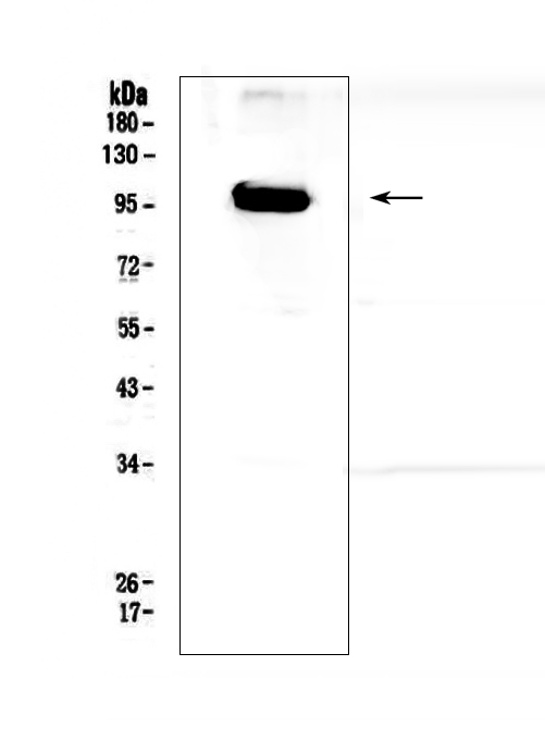 Figure 1. Western blot analysis of APP/C99 using anti-APP/C99 antibody (A00081-3). <br>Electrophoresis was performed on a 5-20% SDS-PAGE gel at 70V (Stacking gel) / 90V (Resolving gel) for 2-3 hours. The sample well of each lane was loaded with 50ug of sample under reducing conditions. <br>Lane 1: human T-47D whole cell lysates. <br>After Electrophoresis, proteins were transferred to a Nitrocellulose membrane at 150mA for 50-90 minutes. Blocked the membrane with 5% Non-fat Milk/ TBS for 1.5 hour at RT. The membrane was incubated with rabbit anti-APP/C99 antigen affinity purified polyclonal antibody (Catalog # A00081-3) at 0.5 μg/mL overnight at 4°C, then washed with TBS-0.1%Tween 3 times with 5 minutes each and probed with a goat anti-rabbit IgG-HRP secondary antibody at a dilution of 1:10000 for 1.5 hour at RT. The signal is developed using an Enhanced Chemiluminescent detection (ECL) kit (Catalog # EK1002) with Tanon 5200 system. A specific band was detected for APP/C99 at approximately 99KD. The expected band size for APP/C99 is at 87KD.