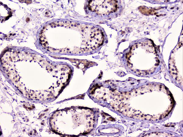 Figure 4. IHC analysis of Rad51 using anti-Rad51 antibody (A00088).<br>Rad51 was detected in paraffin-embedded section of human testis tissue. Heat mediated antigen retrieval was performed in citrate buffer (pH6, epitope retrieval solution) for 20 mins. The tissue section was blocked with 10% goat serum. The tissue section was then incubated with 1μg/ml rabbit anti-Rad51 Antibody (A00088) overnight at 4°C. Biotinylated goat anti-rabbit IgG was used as secondary antibody and incubated for 30 minutes at 37°C. The tissue section was developed using Strepavidin-Biotin-Complex (SABC)(Catalog # SA1022) with DAB as the chromogen. <br>