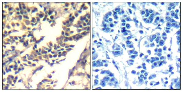 Figure 2. IHC analysis of CBL using anti-CBL antibody (A00152-1).<br>CBL was detected in paraffin-embedded section. Heat mediated antigen retrieval was performed in citrate buffer (pH6, epitope retrieval solution) for 20 mins. The tissue section was blocked with 10% goat serum. The tissue section was then incubated with 1ug/ml rabbit anti-CBL Antibody (A00152-1) overnight at 4°C. Biotinylated goat anti Rabbit IgG antibody was used as secondary antibody and incubated for 30 minutes at 37°C. The tissue section was developed using Strepavidin-Biotin-Complex (SABC)(Catalog # SA1022) with DAB as the chromogen.
