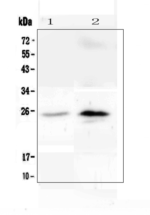 Figure 1. Western blot analysis of C Reactive Protein using anti-C Reactive Protein antibody (A00249-4). <br>Electrophoresis was performed on a 5-20% SDS-PAGE gel at 70V (Stacking gel) / 90V (Resolving gel) for 2-3 hours. The sample well of each lane was loaded with 50ug of sample under reducing conditions. <br>Lane 1: human U-937 whole cell lysate,<br>Lane 2: human A431 whole cell lysate. <br>After Electrophoresis, proteins were transferred to a Nitrocellulose membrane at 150mA for 50-90 minutes. Blocked the membrane with 5% Non-fat Milk/ TBS for 1.5 hour at RT. The membrane was incubated with rabbit anti-C Reactive Protein antigen affinity purified polyclonal antibody (Catalog # A00249-4) at 0.5 μg/mL overnight at 4°C, then washed with TBS-0.1%Tween 3 times with 5 minutes each and probed with a goat anti-rabbit IgG-HRP secondary antibody at a dilution of 1:10000 for 1.5 hour at RT. The signal is developed using an Enhanced Chemiluminescent detection (ECL) kit (Catalog # EK1002) with Tanon 5200 system. A specific band was detected for C Reactive Protein at approximately 25KD. The expected band size for C Reactive Protein is at 25KD.