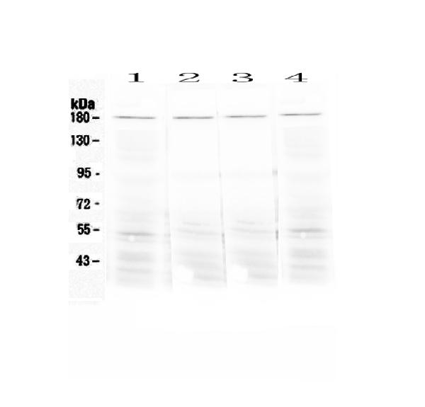 Figure 1. Western blot analysis of Ace using anti-Ace antibody (A00251).  <br>Electrophoresis was performed on a 5-20% SDS-PAGE gel at 70V (Stacking gel) / 90V (Resolving gel) for 2-3 hours. The sample well of each lane was loaded with 50ug of sample under reducing conditions.  <br>Lane 1: mouse lung tissue lysates,<br>Lane 2: mouse testis tissue lysates,<br>Lane 3: mouse stomach tissue lysates,<br>Lane 4: rat lung tissue lysates.<br>After Electrophoresis, proteins were transferred to a Nitrocellulose membrane at 150mA for 50-90 minutes. Blocked the membrane with 5% Non-fat Milk/ TBS for 1.5 hour at RT. The membrane was incubated with rabbit anti-Ace antigen affinity purified polyclonal antibody (Catalog # A00251) at 0.5 μg/mL overnight at 4°C, then washed with TBS-0.1%Tween 3 times with 5 minutes each and probed with a goat anti-rabbit IgG-HRP secondary antibody at a dilution of 1:10000 for 1.5 hour at RT. The signal is developed using an Enhanced Chemiluminescent detection (ECL) kit (Catalog # EK1002) with Tanon 5200 system. A specific band was detected for Ace at approximately 180KD. The expected band size for Ace is at 150KD.
