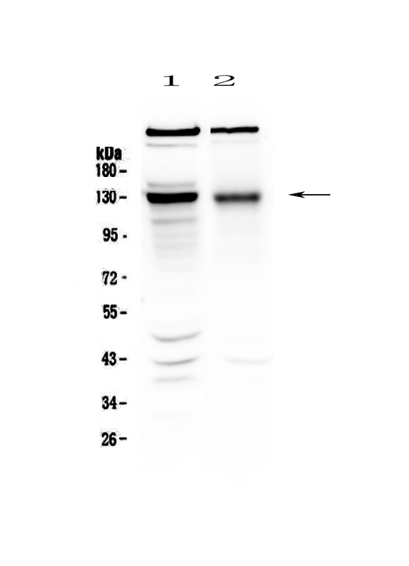 Figure 1. Western blot analysis of BMPR2 using anti-BMPR2 antibody (A00324-1).  <br>Electrophoresis was performed on a 5-20% SDS-PAGE gel at 70V (Stacking gel) / 90V (Resolving gel) for 2-3 hours. The sample well of each lane was loaded with 50ug of sample under reducing conditions.  <br>Lane 1: rat brain tissue lysate,<br>Lane 2: mouse brain tissue lysate.  <br>After Electrophoresis, proteins were transferred to a Nitrocellulose membrane at 150mA for 50-90 minutes. Blocked the membrane with 5% Non-fat Milk/ TBS for 1.5 hour at RT. The membrane was incubated with rabbit anti-BMPR2 antigen affinity purified polyclonal antibody (Catalog # A00324-1) at 0.5 μg/mL overnight at 4°C, then washed with TBS-0.1%Tween 3 times with 5 minutes each and probed with a goat anti-rabbit IgG-HRP secondary antibody at a dilution of 1:10000 for 1.5 hour at RT. The signal is developed using an Enhanced Chemiluminescent detection (ECL) kit (Catalog # EK1002) with Tanon 5200 system. A specific band was detected for BMPR2 at approximately 130KD. The expected band size for BMPR2 is at 115KD.