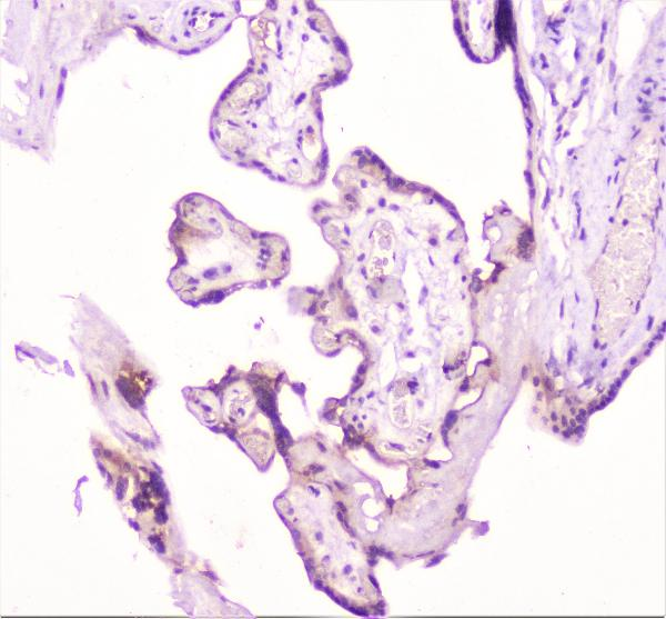 Figure 6. IHC analysis of TANK using anti-TANK antibody (A00445-3).<br>TANK was detected in paraffin-embedded section of human placenta tissue. Heat mediated antigen retrieval was performed in citrate buffer (pH6, epitope retrieval solution) for 20 mins. The tissue section was blocked with 10% goat serum. The tissue section was then incubated with 1μg/ml rabbit anti-TANK Antibody (A00445-3) overnight at 4°C. Biotinylated goat anti-rabbit IgG was used as secondary antibody and incubated for 30 minutes at 37°C. The tissue section was developed using Strepavidin-Biotin-Complex (SABC)(Catalog # SA1022) with DAB as the chromogen. <br>