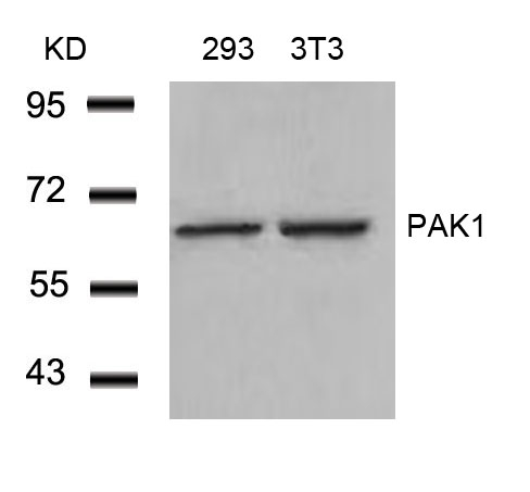 Figure 1. Western blot analysis of PAK1 using anti-PAK1 antibody (A00454).<br>Electrophoresis was performed on a 5-20% SDS-PAGE gel at 70V (Stacking gel) / 90V (Resolving gel) for 2-3 hours. The sample well of each lane was loaded with 50ug of sample under reducing conditions. <br>After Electrophoresis, proteins were transferred to a Nitrocellulose membrane at 150mA for 50-90 minutes. Blocked the membrane with 5% Non-fat Milk/ TBS for 1.5 hour at RT. The membrane was incubated with rabbit anti-PAK1 antigen affinity purified polyclonal antibody (Catalog # A00454) at 0.5 ug/mL overnight at 4°C, then washed with TBS-0.1%Tween 3 times with 5 minutes each and probed with a goat anti-Rabbit IgG-HRP secondary antibody at a dilution of 1:10000 for 1.5 hour at RT. The signal is developed using an Enhanced Chemiluminescent detection (ECL) kit (Catalog # SA1022) with Tanon 5200 system. A specific band was detected for PAK1.
