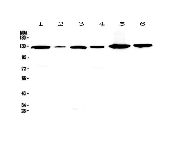Figure 1. Western blot analysis of VEGF Receptor 1  using anti-VEGF Receptor 1  antibody (A00534).  <br>Electrophoresis was performed on a 5-20% SDS-PAGE gel at 70V (Stacking gel) / 90V (Resolving gel) for 2-3 hours. The sample well of each lane was loaded with 50ug of sample under reducing conditions.  <br>Lane 1: human Hela cell lysate,<br>Lane 2: human placenta tissue lysate,<br>Lane 3: human A549 cell lysate,<br>Lane 4: human COLO-320 cell lysate,<br>Lane 5: Human A431 cell lysate,<br>Lane 6: human SK-OV-3 cell lysate.  <br>After Electrophoresis, proteins were transferred to a Nitrocellulose membrane at 150mA for 50-90 minutes. Blocked the membrane with 5% Non-fat Milk/ TBS for 1.5 hour at RT. The membrane was incubated with rabbit anti-VEGF Receptor 1  antigen affinity purified polyclonal antibody (Catalog # A00534) at 0.5 μg/mL overnight at 4°C, then washed with TBS-0.1%Tween 3 times with 5 minutes each and probed with a goat anti-rabbit IgG-HRP secondary antibody at a dilution of 1:10000 for 1.5 hour at RT. The signal is developed using an Enhanced Chemiluminescent detection (ECL) kit (Catalog # EK1002) with Tanon 5200 system. A specific band was detected for VEGF Receptor 1  at approximately 125KD. The expected band size for VEGF Receptor 1  is at 150KD.