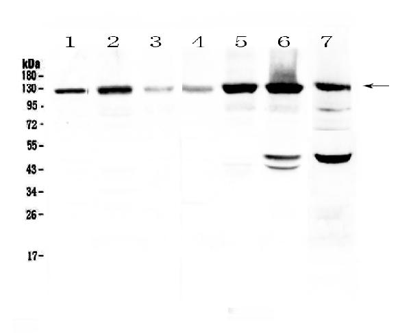 Figure 1. Western blot analysis of Eph receptor A2  using anti-Eph receptor A2  antibody (A00578).  <br>Electrophoresis was performed on a 5-20% SDS-PAGE gel at 70V (Stacking gel) / 90V (Resolving gel) for 2-3 hours. The sample well of each lane was loaded with 50ug of sample under reducing conditions.  <br>Lane 1: human Hela cell lysate,<br>Lane 2: human U-87MG cell lysate,<br>Lane 3: human SHG-44 cell lysate,<br>Lane 4: human COLO-320 cell lysate,<br>Lane 5: human SK-OV-3 cell lysate,<br>Lane 6: human A549 cell lysate,<br>Lane 7: mouse HEPA1-6 cell lysate.  <br>After Electrophoresis, proteins were transferred to a Nitrocellulose membrane at 150mA for 50-90 minutes. Blocked the membrane with 5% Non-fat Milk/ TBS for 1.5 hour at RT. The membrane was incubated with rabbit anti-Eph receptor A2  antigen affinity purified polyclonal antibody (Catalog # A00578) at 0.5 μg/mL overnight at 4°C, then washed with TBS-0.1%Tween 3 times with 5 minutes each and probed with a goat anti-rabbit IgG-HRP secondary antibody at a dilution of 1:10000 for 1.5 hour at RT. The signal is developed using an Enhanced Chemiluminescent detection (ECL) kit (Catalog # EK1002) with Tanon 5200 system. A specific band was detected for Eph receptor A2  at approximately 125KD. The expected band size for Eph receptor A2  is at 108KD.