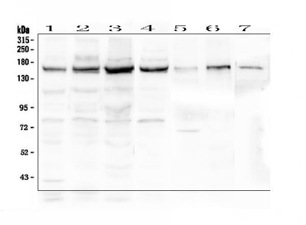 Figure 1. Western blot analysis of Collagen III using anti-Collagen III antibody (A00788-3).  <br>Electrophoresis was performed on a 5-20% SDS-PAGE gel at 70V (Stacking gel) / 90V (Resolving gel) for 2-3 hours. The sample well of each lane was loaded with 50ug of sample under reducing conditions.  <br>Lane 1: human A431 whole cell lysate,<br>Lane 2: human U2OS whole cell lysate,<br>Lane 3: human SW620 whole cell lysate,<br>Lane 4: human SGC-7901 whole cell lysate,<br>Lane 5: rat heart tissue lysate,<br>Lane 6: rat skeletal muscle tissue lysate,<br>Lane 7: mouse skeletal muscle tissue lysate.  <br>After Electrophoresis, proteins were transferred to a Nitrocellulose membrane at 150mA for 50-90 minutes. Blocked the membrane with 5% Non-fat Milk/ TBS for 1.5 hour at RT. The membrane was incubated with rabbit anti-Collagen III antigen affinity purified polyclonal antibody (Catalog # A00788-3) at 0.5 μg/mL overnight at 4°C, then washed with TBS-0.1%Tween 3 times with 5 minutes each and probed with a goat anti-rabbit IgG-HRP secondary antibody at a dilution of 1:10000 for 1.5 hour at RT. The signal is developed using an Enhanced Chemiluminescent detection (ECL) kit (Catalog # EK1002) with Tanon 5200 system. A specific band was detected for Collagen III at approximately 160KD. The expected band size for Collagen III is at 139KD.