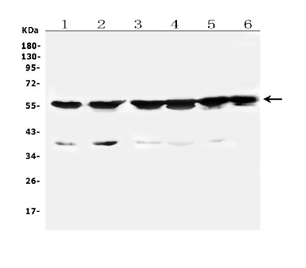 Figure 1. Western blot analysis of CYP2B6 using anti-CYP2B6 antibody (A00861-2). <br> Electrophoresis was performed on a 5-20% SDS-PAGE gel at 70V (Stacking gel) / 90V (Resolving gel) for 2-3 hours. The sample well of each lane was loaded with 50ug of sample under reducing conditions. <br> Lane 1: human Caco-2 whole cell lysates, <br> Lane 2: human HEK293 whole cell lysates, <br> Lane 3: human PC-3 whole cell lysates, <br> Lane 4: human HL-60 whole cell  lysates, <br> Lane 5: human K562 whole cell lysates, <br> Lane 6: human A549 whole cell lysates. <br> After Electrophoresis, proteins were transferred to a Nitrocellulose membrane at 150mA for 50-90 minutes. Blocked the membrane with 5% Non-fat Milk/ TBS for 1.5 hour at RT. The membrane was incubated with rabbit anti-CYP2B6 antigen affinity purified polyclonal antibody (Catalog # A00861-2) at 0.5 μg/mL overnight at 4°C, then washed with TBS-0.1%Tween 3 times with 5 minutes each and probed with a goat anti-rabbit IgG-HRP secondary antibody at a dilution of 1:10000 for 1.5 hour at RT. The signal is developed using an Enhanced Chemiluminescent detection (ECL) kit (Catalog # EK1002) with Tanon 5200 system. A specific band was detected for CYP2B6 at approximately 56KD. The expected band size for CYP2B6 is at 56KD.