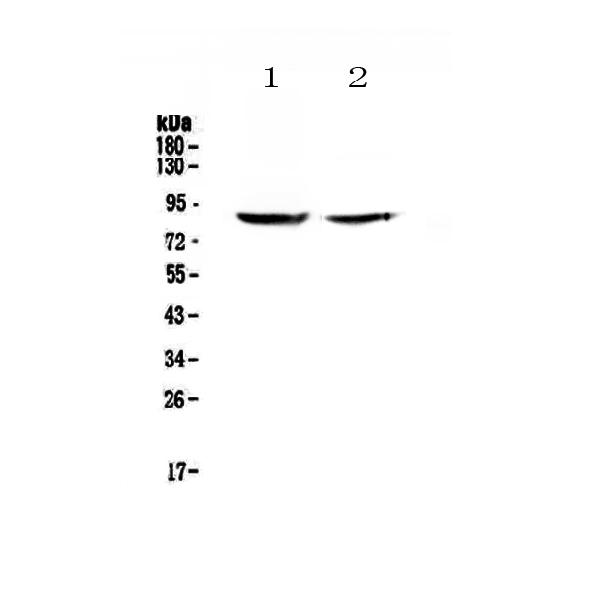 Figure 1. Western blot analysis of SLC26A4 using anti-SLC26A4 antibody (A00919-1).  <br>Electrophoresis was performed on a 5-20% SDS-PAGE gel at 70V (Stacking gel) / 90V (Resolving gel) for 2-3 hours. The sample well of each lane was loaded with 50ug of sample under reducing conditions.  <br>Lane 1: human HK-2 whole cell lysates, <br>Lane 2: human 293T whole cell lysates.  <br>After Electrophoresis, proteins were transferred to a Nitrocellulose membrane at 150mA for 50-90 minutes. Blocked the membrane with 5% Non-fat Milk/ TBS for 1.5 hour at RT. The membrane was incubated with rabbit anti-SLC26A4 antigen affinity purified polyclonal antibody (Catalog # A00919-1) at 0.5 μg/mL overnight at 4°C, then washed with TBS-0.1%Tween 3 times with 5 minutes each and probed with a goat anti-rabbit IgG-HRP secondary antibody at a dilution of 1:10000 for 1.5 hour at RT. The signal is developed using an Enhanced Chemiluminescent detection (ECL) kit (Catalog # EK1002) with Tanon 5200 system. A specific band was detected for SLC26A4 at approximately 86KD. The expected band size for SLC26A4 is at 86KD.