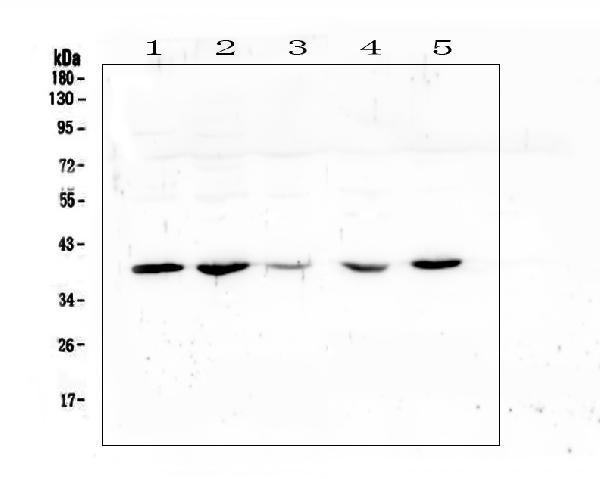 Figure 1. Western blot analysis of uPA Receptor using anti-uPA Receptor antibody (A00993-3). <br>Electrophoresis was performed on a 5-20% SDS-PAGE gel at 70V (Stacking gel) / 90V (Resolving gel) for 2-3 hours. The sample well of each lane was loaded with 50ug of sample under reducing conditions. <br>Lane 1: human placenta tissue lysate,<br>Lane 2: human U20S whole cell lysate,<br>Lane 3: human A431 whole cell lysate,<br>Lane 4: human Hela whole cell lysate,<br>Lane 5: human A549 whole cell lysate. <br>After Electrophoresis, proteins were transferred to a Nitrocellulose membrane at 150mA for 50-90 minutes. Blocked the membrane with 5% Non-fat Milk/ TBS for 1.5 hour at RT. The membrane was incubated with rabbit anti-uPA Receptor antigen affinity purified polyclonal antibody (Catalog # A00993-3) at 0.5 μg/mL overnight at 4°C, then washed with TBS-0.1%Tween 3 times with 5 minutes each and probed with a goat anti-rabbit IgG-HRP secondary antibody at a dilution of 1:10000 for 1.5 hour at RT. The signal is developed using an Enhanced Chemiluminescent detection (ECL) kit (Catalog # EK1002) with Tanon 5200 system. A specific band was detected for uPA Receptor at approximately 39KD. The expected band size for uPA Receptor is at 37KD.