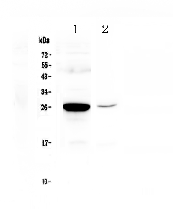 Figure 1. Western blot analysis of MBL2 using anti-MBL2 antibody (A01000-3).  <br>Electrophoresis was performed on a 5-20% SDS-PAGE gel at 70V (Stacking gel) / 90V (Resolving gel) for 2-3 hours. The sample well of each lane was loaded with 50ug of sample under reducing conditions.  <br>Lane 1: mouse liver tissue lysates,<br>Lane 2: mouse HEPA1-6 whole cell lysates.  <br>After Electrophoresis, proteins were transferred to a Nitrocellulose membrane at 150mA for 50-90 minutes. Blocked the membrane with 5% Non-fat Milk/ TBS for 1.5 hour at RT. The membrane was incubated with rabbit anti-MBL2 antigen affinity purified polyclonal antibody (Catalog # A01000-3) at 0.5 μg/mL overnight at 4°C, then washed with TBS-0.1%Tween 3 times with 5 minutes each and probed with a goat anti-rabbit IgG-HRP secondary antibody at a dilution of 1:10000 for 1.5 hour at RT. The signal is developed using an Enhanced Chemiluminescent detection (ECL) kit (Catalog # EK1002) with Tanon 5200 system. A specific band was detected for MBL2 at approximately 26KD. The expected band size for MBL2 is at 26KD.