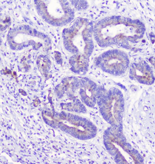 Figure 3. IHC analysis of LATS1 using anti-LATS1 antibody (A01051-2).<br>LATS1 was detected in paraffin-embedded section of human cholangiocarcinoma tissue. Heat mediated antigen retrieval was performed in citrate buffer (pH6, epitope retrieval solution) for 20 mins. The tissue section was blocked with 10% goat serum. The tissue section was then incubated with 1μg/ml rabbit anti-LATS1 Antibody (A01051-2) overnight at 4°C. Biotinylated goat anti-rabbit IgG was used as secondary antibody and incubated for 30 minutes at 37°C. The tissue section was developed using Strepavidin-Biotin-Complex (SABC)(Catalog # SA1022) with DAB as the chromogen. <br>