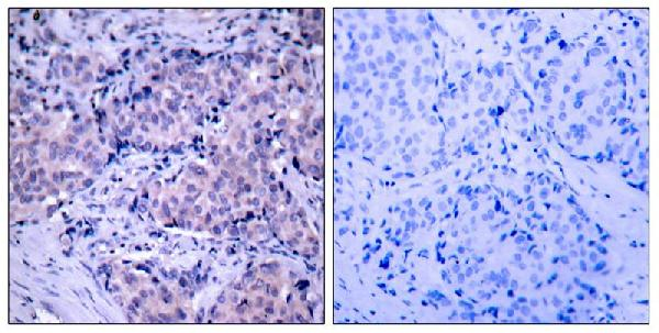 Figure 2. IHC analysis of PDPK1 using anti-PDPK1 antibody (A01159).<br>PDPK1 was detected in paraffin-embedded section. Heat mediated antigen retrieval was performed in citrate buffer (pH6, epitope retrieval solution) for 20 mins. The tissue section was blocked with 10% goat serum. The tissue section was then incubated with 1ug/ml rabbit anti-PDPK1 Antibody (A01159) overnight at 4°C. Biotinylated goat anti Rabbit IgG antibody was used as secondary antibody and incubated for 30 minutes at 37°C. The tissue section was developed using Strepavidin-Biotin-Complex (SABC)(Catalog # SA1022) with DAB as the chromogen.