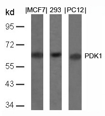 Figure 1. Western blot analysis of PDPK1 using anti-PDPK1 antibody (A01159).<br>Electrophoresis was performed on a 5-20% SDS-PAGE gel at 70V (Stacking gel) / 90V (Resolving gel) for 2-3 hours. The sample well of each lane was loaded with 50ug of sample under reducing conditions. <br>After Electrophoresis, proteins were transferred to a Nitrocellulose membrane at 150mA for 50-90 minutes. Blocked the membrane with 5% Non-fat Milk/ TBS for 1.5 hour at RT. The membrane was incubated with rabbit anti-PDPK1 antigen affinity purified polyclonal antibody (Catalog # A01159) at 0.5 ug/mL overnight at 4°C, then washed with TBS-0.1%Tween 3 times with 5 minutes each and probed with a goat anti-Rabbit IgG-HRP secondary antibody at a dilution of 1:10000 for 1.5 hour at RT. The signal is developed using an Enhanced Chemiluminescent detection (ECL) kit (Catalog # SA1022) with Tanon 5200 system. A specific band was detected for PDPK1.
