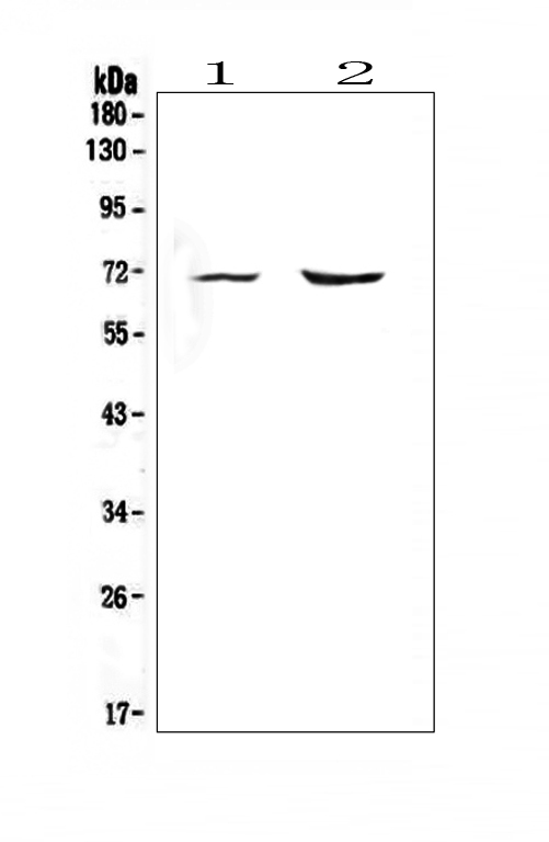 Figure 1. Western blot analysis of Melanoma gp100 using anti-Melanoma gp100 antibody (A01262-1).  <br>Electrophoresis was performed on a 5-20% SDS-PAGE gel at 70V (Stacking gel) / 90V (Resolving gel) for 2-3 hours. The sample well of each lane was loaded with 50ug of sample under reducing conditions.  <br>Lane 1: rat heart tissue lysate,<br>Lane 2: mouse heart tissue lysate.  <br>After Electrophoresis, proteins were transferred to a Nitrocellulose membrane at 150mA for 50-90 minutes. Blocked the membrane with 5% Non-fat Milk/ TBS for 1.5 hour at RT. The membrane was incubated with rabbit anti-Melanoma gp100 antigen affinity purified polyclonal antibody (Catalog # A01262-1) at 0.5 μg/mL overnight at 4°C, then washed with TBS-0.1%Tween 3 times with 5 minutes each and probed with a goat anti-rabbit IgG-HRP secondary antibody at a dilution of 1:10000 for 1.5 hour at RT. The signal is developed using an Enhanced Chemiluminescent detection (ECL) kit (Catalog # EK1002) with Tanon 5200 system. A specific band was detected for Melanoma gp100 at approximately 70KD. The expected band size for Melanoma gp100 is at 70KD.