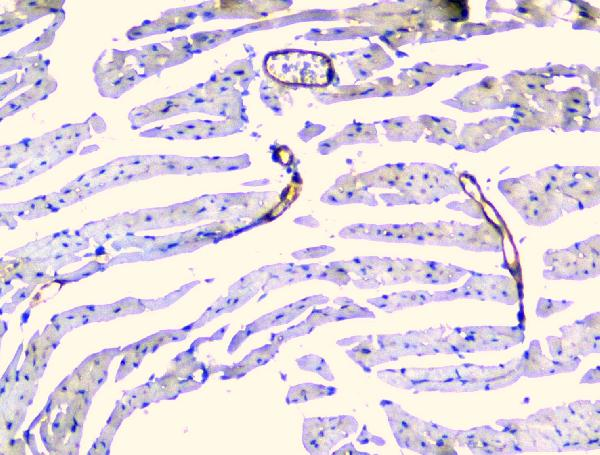 Figure 5. IHC analysis of TEK using anti-TEK antibody (A01274-1).<br>TEK was detected in paraffin-embedded section of mouse heart tissue. Heat mediated antigen retrieval was performed in citrate buffer (pH6, epitope retrieval solution) for 20 mins. The tissue section was blocked with 10% goat serum. The tissue section was then incubated with 1μg/ml rabbit anti-TEK Antibody (A01274-1) overnight at 4°C. Biotinylated goat anti-rabbit IgG was used as secondary antibody and incubated for 30 minutes at 37°C. The tissue section was developed using Strepavidin-Biotin-Complex (SABC)(Catalog # SA1022) with DAB as the chromogen. <br>