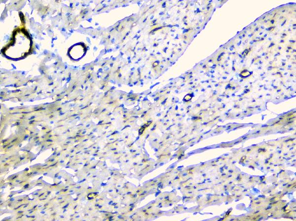 Figure 8. IHC analysis of TEK using anti-TEK antibody (A01274-1).<br>TEK was detected in paraffin-embedded section of rat heart tissue. Heat mediated antigen retrieval was performed in citrate buffer (pH6, epitope retrieval solution) for 20 mins. The tissue section was blocked with 10% goat serum. The tissue section was then incubated with 1μg/ml rabbit anti-TEK Antibody (A01274-1) overnight at 4°C. Biotinylated goat anti-rabbit IgG was used as secondary antibody and incubated for 30 minutes at 37°C. The tissue section was developed using Strepavidin-Biotin-Complex (SABC)(Catalog # SA1022) with DAB as the chromogen. <br>