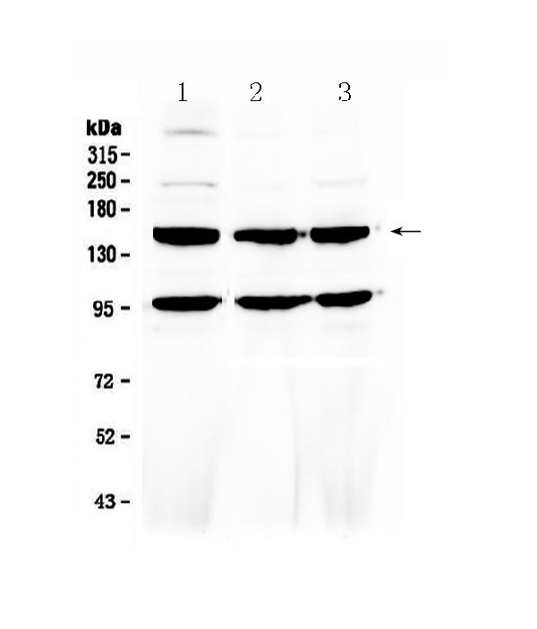 Figure 1. Western blot analysis of VEGF Receptor 3 using anti-VEGF Receptor 3 antibody (A01276-2). <br>Electrophoresis was performed on a 5-20% SDS-PAGE gel at 70V (Stacking gel) / 90V (Resolving gel) for 2-3 hours. The sample well of each lane was loaded with 50ug of sample under reducing conditions. <br>Lane 1: human Hela whole cell lysates,<br>Lane 2: human MCF-7 whole cell lysates,<br>Lane 3: human HepG2 whole cell lysates. <br>After Electrophoresis, proteins were transferred to a Nitrocellulose membrane at 150mA for 50-90 minutes. Blocked the membrane with 5% Non-fat Milk/ TBS for 1.5 hour at RT. The membrane was incubated with rabbit anti-VEGF Receptor 3 antigen affinity purified polyclonal antibody (Catalog # A01276-2) at 0.5 ug/mL overnight at 4?? then washed with TBS-0.1%Tween 3 times with 5 minutes each and probed with a goat anti-rabbit IgG-HRP secondary antibody at a dilution of 1:10000 for 1.5 hour at RT. The signal is developed using an Enhanced Chemiluminescent detection (ECL) kit (Catalog # EK1002) with Tanon 5200 system. A specific band was detected for VEGF Receptor 3 at approximately 153KD. The expected band size for VEGF Receptor 3 is at 153KD.