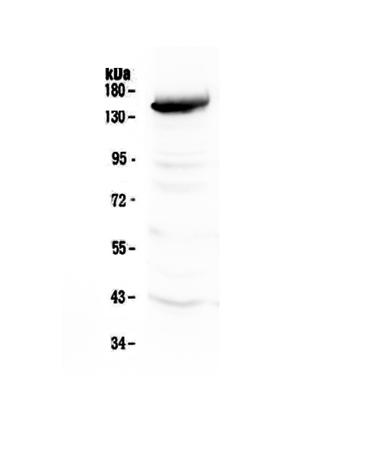 Figure 1. Western blot analysis of VEGF Receptor 3 using anti-VEGF Receptor 3 antibody (A01276-3).  <br>Electrophoresis was performed on a 5-20% SDS-PAGE gel at 70V (Stacking gel) / 90V (Resolving gel) for 2-3 hours. The sample well of each lane was loaded with 50ug of sample under reducing conditions.  <br>Lane 1: rat liver tissue lysates.<br>After Electrophoresis, proteins were transferred to a Nitrocellulose membrane at 150mA for 50-90 minutes. Blocked the membrane with 5% Non-fat Milk/ TBS for 1.5 hour at RT. The membrane was incubated with rabbit anti-VEGF Receptor 3 antigen affinity purified polyclonal antibody (Catalog # A01276-3) at 0.5 μg/mL overnight at 4°C, then washed with TBS-0.1%Tween 3 times with 5 minutes each and probed with a goat anti-rabbit IgG-HRP secondary antibody at a dilution of 1:10000 for 1.5 hour at RT. The signal is developed using an Enhanced Chemiluminescent detection (ECL) kit (Catalog # EK1002) with Tanon 5200 system. A specific band was detected for VEGF Receptor 3 at approximately 153KD. The expected band size for VEGF Receptor 3 is at 153KD.