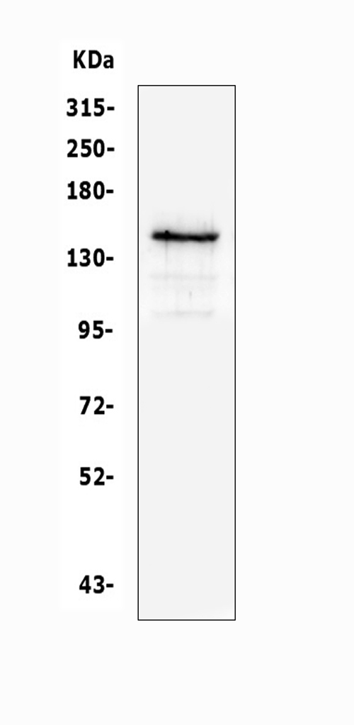 Figure 1. Western blot analysis of KIT using anti-KIT antibody (A01335-1). <br> Electrophoresis was performed on a 5-20% SDS-PAGE gel at 70V (Stacking gel) / 90V (Resolving gel) for 2-3 hours. The sample well of each lane was loaded with 50ug of sample under reducing conditions. <br> Lane 1: human A549 whole cell lysates. <br> After Electrophoresis, proteins were transferred to a Nitrocellulose membrane at 150mA for 50-90 minutes. Blocked the membrane with 5% Non-fat Milk/ TBS for 1.5 hour at RT. The membrane was incubated with rabbit anti-KIT antigen affinity purified polyclonal antibody (Catalog # A01335-1) at 0.5 μg/mL overnight at 4°C, then washed with TBS-0.1%Tween 3 times with 5 minutes each and probed with a goat anti-rabbit IgG-HRP secondary antibody at a dilution of 1:10000 for 1.5 hour at RT. The signal is developed using an Enhanced Chemiluminescent detection (ECL) kit (Catalog # EK1002) with Tanon 5200 system. A specific band was detected for KIT at approximately 145KD. The expected band size for KIT is at 110KD.