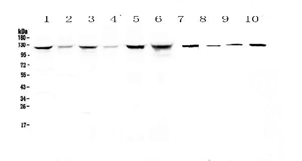 Figure 1. Western blot analysis of IDE using anti-IDE antibody (A01358-2).  <br>Electrophoresis was performed on a 5-20% SDS-PAGE gel at 70V (Stacking gel) / 90V (Resolving gel) for 2-3 hours. The sample well of each lane was loaded with 50ug of sample under reducing conditions.  <br>Lane 1: human Hela whole cell lysates, <br>Lane 2: human placenta tissue lysates,<br>Lane 3: human COLO-320 whole cell lysates, <br>Lane 4: human HepG2 whole cell lysates, <br>Lane 5: human SGC-7901 whole cell lysates, <br>Lane 6: human Jurkat whole cell lysates, <br>Lane 7: rat stomach tissue lysates,<br>Lane 8: mouse skeletal muscle tissue lysates,<br>Lane 9: mouse stomach tissue lysates,<br>Lane 10: mouse brain tissue lysates.  <br>After Electrophoresis, proteins were transferred to a Nitrocellulose membrane at 150mA for 50-90 minutes. Blocked the membrane with 5% Non-fat Milk/ TBS for 1.5 hour at RT. The membrane was incubated with rabbit anti-IDE antigen affinity purified polyclonal antibody (Catalog # A01358-2) at 0.5 μg/mL overnight at 4°C, then washed with TBS-0.1%Tween 3 times with 5 minutes each and probed with a goat anti-rabbit IgG-HRP secondary antibody at a dilution of 1:10000 for 1.5 hour at RT. The signal is developed using an Enhanced Chemiluminescent detection (ECL) kit (Catalog # EK1002) with Tanon 5200 system. A specific band was detected for IDE at approximately 118KD. The expected band size for IDE is at 118KD.