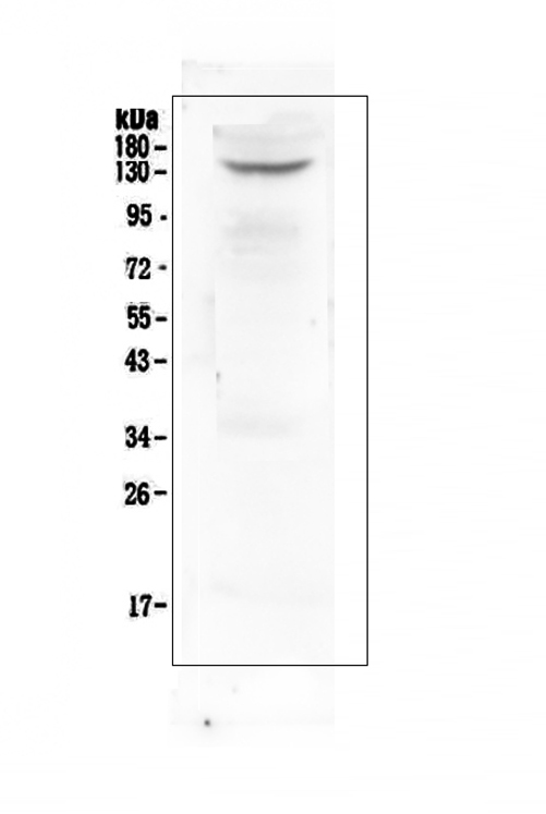 Figure 1. Western blot analysis of TrkB using anti-TrkB antibody (A01388-3).  <br>Electrophoresis was performed on a 5-20% SDS-PAGE gel at 70V (Stacking gel) / 90V (Resolving gel) for 2-3 hours. The sample well of each lane was loaded with 50ug of sample under reducing conditions.  <br>Lane 1: human U-87MG whole cell lysate.  <br>After Electrophoresis, proteins were transferred to a Nitrocellulose membrane at 150mA for 50-90 minutes. Blocked the membrane with 5% Non-fat Milk/ TBS for 1.5 hour at RT. The membrane was incubated with rabbit anti-TrkB antigen affinity purified polyclonal antibody (Catalog # A01388-3) at 0.5 μg/mL overnight at 4°C, then washed with TBS-0.1%Tween 3 times with 5 minutes each and probed with a goat anti-rabbit IgG-HRP secondary antibody at a dilution of 1:10000 for 1.5 hour at RT. The signal is developed using an Enhanced Chemiluminescent detection (ECL) kit (Catalog # EK1002) with Tanon 5200 system. A specific band was detected for TrkB at approximately 140KD. The expected band size for TrkB is at 92KD.