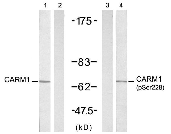 Figure 1. Western blot analysis of CARM1 using anti-CARM1 antibody (A01486).<br>Electrophoresis was performed on a 5-20% SDS-PAGE gel at 70V (Stacking gel) / 90V (Resolving gel) for 2-3 hours. The sample well of each lane was loaded with 50ug of sample under reducing conditions. <br>After Electrophoresis, proteins were transferred to a Nitrocellulose membrane at 150mA for 50-90 minutes. Blocked the membrane with 5% Non-fat Milk/ TBS for 1.5 hour at RT. The membrane was incubated with rabbit anti-CARM1 antigen affinity purified polyclonal antibody (Catalog # A01486) at 0.5 ug/mL overnight at 4°C, then washed with TBS-0.1%Tween 3 times with 5 minutes each and probed with a goat anti-Rabbit IgG-HRP secondary antibody at a dilution of 1:10000 for 1.5 hour at RT. The signal is developed using an Enhanced Chemiluminescent detection (ECL) kit (Catalog # SA1022) with Tanon 5200 system. A specific band was detected for CARM1.