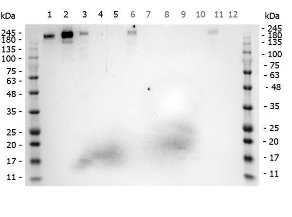 Figure 7. Western blot analysis of ROBO1 using anti-ROBO1 antibody (A01530-1).<br>Electrophoresis was performed on a 5-20% SDS-PAGE gel at 70V (Stacking gel) / 90V (Resolving gel) for 2-3 hours. The sample well of each lane was loaded with 50ug of sample under reducing conditions. <br>After Electrophoresis, proteins were transferred to a Nitrocellulose membrane at 150mA for 50-90 minutes. Blocked the membrane with 5% Non-fat Milk/ TBS for 1.5 hour at RT. The membrane was incubated with rabbit anti-ROBO1 antigen affinity purified polyclonal antibody (Catalog # A01530-1) at 0.5 ug/mL overnight at 4