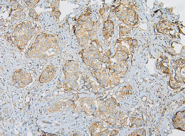 Figure 4. IHC analysis of IQGAP1 using anti-IQGAP1 antibody (A01603).<br>IQGAP1 was detected in paraffin-embedded section of human mammary cancer tissue. Heat mediated antigen retrieval was performed in citrate buffer (pH6, epitope retrieval solution) for 20 mins. The tissue section was blocked with 10% goat serum. The tissue section was then incubated with 1μg/ml rabbit anti-IQGAP1 Antibody (A01603) overnight at 4°C. Biotinylated goat anti-rabbit IgG was used as secondary antibody and incubated for 30 minutes at 37°C. The tissue section was developed using Strepavidin-Biotin-Complex (SABC)(Catalog # SA1022) with DAB as the chromogen. <br>