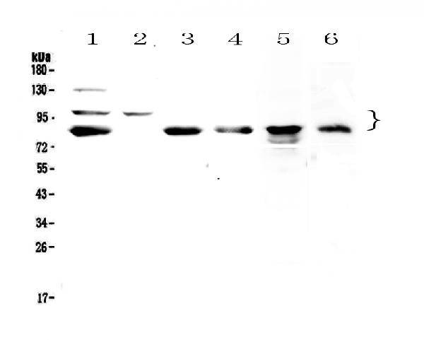 Figure 1. Western blot analysis of TPX2 using anti-TPX2 antibody (A01610-1).  <br>Electrophoresis was performed on a 5-20% SDS-PAGE gel at 70V (Stacking gel) / 90V (Resolving gel) for 2-3 hours. The sample well of each lane was loaded with 50ug of sample under reducing conditions.  <br>Lane 1: human Hela whole cell lysates,<br>Lane 2: human COLO-320 whole cell lysates,<br>Lane 3: human U-87MG whole cell lysates,<br>Lane 4: human SGC-7901 whole cell lysates,<br>Lane 5: rat PC-12 whole cell lysates,<br>Lane 6: mouse HEPA1-6 whole cell lysates.  <br>After Electrophoresis, proteins were transferred to a Nitrocellulose membrane at 150mA for 50-90 minutes. Blocked the membrane with 5% Non-fat Milk/ TBS for 1.5 hour at RT. The membrane was incubated with rabbit anti-TPX2 antigen affinity purified polyclonal antibody (Catalog # A01610-1) at 0.5 μg/mL overnight at 4°C, then washed with TBS-0.1%Tween 3 times with 5 minutes each and probed with a goat anti-rabbit IgG-HRP secondary antibody at a dilution of 1:10000 for 1.5 hour at RT. The signal is developed using an Enhanced Chemiluminescent detection (ECL) kit (Catalog # EK1002) with Tanon 5200 system. A specific band was detected for TPX2 at approximately 86KD, 100KD. The expected band size for TPX2 is at 86KD.