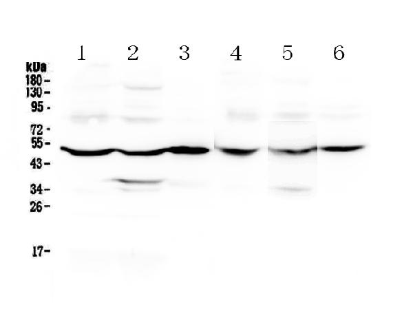 Figure 1. Western blot analysis of GDA using anti-GDA antibody (A01619-1).  <br>Electrophoresis was performed on a 5-20% SDS-PAGE gel at 70V (Stacking gel) / 90V (Resolving gel) for 2-3 hours. The sample well of each lane was loaded with 50ug of sample under reducing conditions.  <br>Lane 1: rat brain tissue lysates,<br>Lane 2: rat liver tissue lysates,<br>Lane 3: rat small intestine tissue lysates,<br>Lane 4: mouse brain tissue lysates,<br>Lane 5: mouse liver tissue lysates,<br>Lane 6: mouse small intestine tissue lysates.  <br>After Electrophoresis, proteins were transferred to a Nitrocellulose membrane at 150mA for 50-90 minutes. Blocked the membrane with 5% Non-fat Milk/ TBS for 1.5 hour at RT. The membrane was incubated with rabbit anti-GDA antigen affinity purified polyclonal antibody (Catalog # A01619-1) at 0.5 μg/mL overnight at 4°C, then washed with TBS-0.1%Tween 3 times with 5 minutes each and probed with a goat anti-rabbit IgG-HRP secondary antibody at a dilution of 1:10000 for 1.5 hour at RT. The signal is developed using an Enhanced Chemiluminescent detection (ECL) kit (Catalog # EK1002) with Tanon 5200 system. A specific band was detected for GDA at approximately 51KD. The expected band size for GDA is at 51KD.