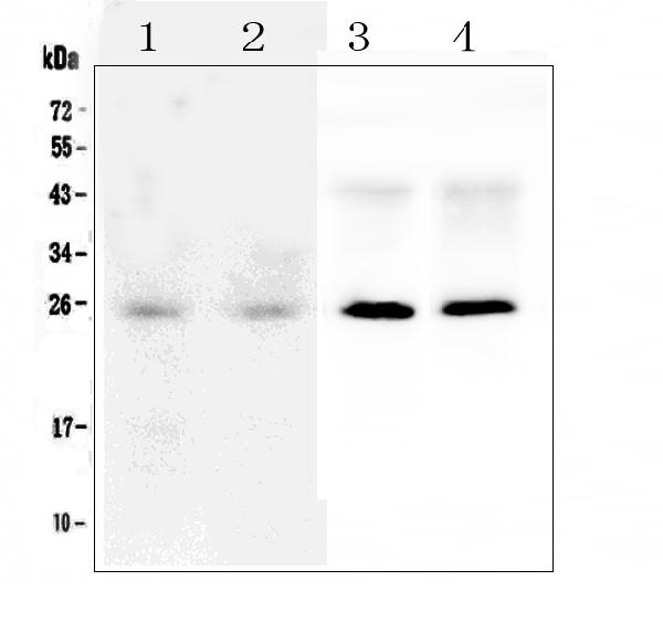Figure 1. Western blot analysis of SNAP25 using anti-SNAP25 antibody (A01625). <br>Electrophoresis was performed on a 5-20% SDS-PAGE gel at 70V (Stacking gel) / 90V (Resolving gel) for 2-3 hours. The sample well of each lane was loaded with 50ug of sample under reducing conditions. <br>Lane 1: human Hela whole cell lysate,<br>Lane 2: human U-87MG whole cell lysate,<br>Lane 3: rat brain tissue lysates,<br>Lane 4: mouse brain tissue lysates. <br>After Electrophoresis, proteins were transferred to a Nitrocellulose membrane at 150mA for 50-90 minutes. Blocked the membrane with 5% Non-fat Milk/ TBS for 1.5 hour at RT. The membrane was incubated with rabbit anti-SNAP25 antigen affinity purified polyclonal antibody (Catalog # A01625) at 0.5 μg/mL overnight at 4°C, then washed with TBS-0.1%Tween 3 times with 5 minutes each and probed with a goat anti-rabbit IgG-HRP secondary antibody at a dilution of 1:10000 for 1.5 hour at RT. The signal is developed using an Enhanced Chemiluminescent detection (ECL) kit (Catalog # EK1002) with Tanon 5200 system. A specific band was detected for SNAP25 at approximately 25KD. The expected band size for SNAP25 is at 25KD.