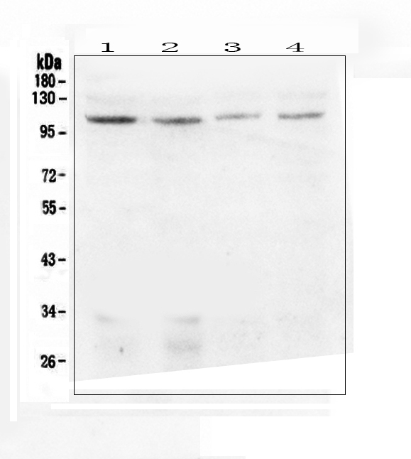 Figure 1. Western blot analysis of DIS3 using anti-DIS3 antibody (A01736-1).  <br>Electrophoresis was performed on a 5-20% SDS-PAGE gel at 70V (Stacking gel) / 90V (Resolving gel) for 2-3 hours. The sample well of each lane was loaded with 50ug of sample under reducing conditions.  <br>Lane 1: human Hela whole cell lysate,<br>Lane 2: human HEK293 whole cell lysate,<br>Lane 3: human MDA-MB-231 whole cell lysate,<br>Lane 4: human Caco-2 whole cell lysate.  <br>After Electrophoresis, proteins were transferred to a Nitrocellulose membrane at 150mA for 50-90 minutes. Blocked the membrane with 5% Non-fat Milk/ TBS for 1.5 hour at RT. The membrane was incubated with rabbit anti-DIS3 antigen affinity purified polyclonal antibody (Catalog # A01736-1) at 0.5 μg/mL overnight at 4°C, then washed with TBS-0.1%Tween 3 times with 5 minutes each and probed with a goat anti-rabbit IgG-HRP secondary antibody at a dilution of 1:10000 for 1.5 hour at RT. The signal is developed using an Enhanced Chemiluminescent detection (ECL) kit (Catalog # EK1002) with Tanon 5200 system. A specific band was detected for DIS3 at approximately 109KD. The expected band size for DIS3 is at 109KD.