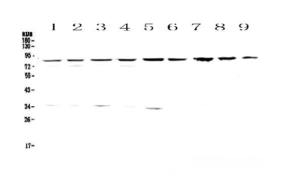 Figure 1. Western blot analysis of CD2AP using anti-CD2AP antibody (A01756-2).  <br>Electrophoresis was performed on a 5-20% SDS-PAGE gel at 70V (Stacking gel) / 90V (Resolving gel) for 2-3 hours. The sample well of each lane was loaded with 50ug of sample under reducing conditions.  <br>Lane 1: human Hela whole cell lysates,<br>Lane 2: human 293T whole cell lysates,<br>Lane 3: human MCF-7 whole cell lysates,<br>Lane 4: human COLO-320 whole cell lysates,<br>Lane 5: human 22RV1 whole cell lysates,<br>Lane 6: human SK-OV-3 whole cell lysates,<br>Lane 7: rat stomach tissue lysates,<br>Lane 8: rat liver tissue lysates,<br>Lane 9: mouse liver tissue lysates.  <br>After Electrophoresis, proteins were transferred to a Nitrocellulose membrane at 150mA for 50-90 minutes. Blocked the membrane with 5% Non-fat Milk/ TBS for 1.5 hour at RT. The membrane was incubated with rabbit anti-CD2AP antigen affinity purified polyclonal antibody (Catalog # A01756-2) at 0.5 μg/mL overnight at 4°C, then washed with TBS-0.1%Tween 3 times with 5 minutes each and probed with a goat anti-rabbit IgG-HRP secondary antibody at a dilution of 1:10000 for 1.5 hour at RT. The signal is developed using an Enhanced Chemiluminescent detection (ECL) kit (Catalog # EK1002) with Tanon 5200 system. A specific band was detected for CD2AP at approximately 85KD. The expected band size for CD2AP is at 71KD.