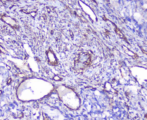 Figure 3. IHC analysis of INPPL1  using anti-INPPL1  antibody (A01790).<br>INPPL1  was detected in paraffin-embedded section of human gastric cancer tissue. Heat mediated antigen retrieval was performed in citrate buffer (pH6, epitope retrieval solution) for 20 mins. The tissue section was blocked with 10% goat serum. The tissue section was then incubated with 1μg/ml rabbit anti-INPPL1  Antibody (A01790) overnight at 4°C. Biotinylated goat anti-rabbit IgG was used as secondary antibody and incubated for 30 minutes at 37°C. The tissue section was developed using Strepavidin-Biotin-Complex (SABC)(Catalog # SA1022) with DAB as the chromogen. <br>