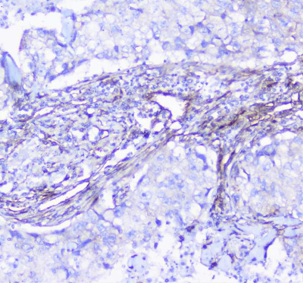 Figure 4. IHC analysis of INPPL1  using anti-INPPL1  antibody (A01790).<br>INPPL1  was detected in paraffin-embedded section of human lung cancer tissue. Heat mediated antigen retrieval was performed in citrate buffer (pH6, epitope retrieval solution) for 20 mins. The tissue section was blocked with 10% goat serum. The tissue section was then incubated with 1μg/ml rabbit anti-INPPL1  Antibody (A01790) overnight at 4°C. Biotinylated goat anti-rabbit IgG was used as secondary antibody and incubated for 30 minutes at 37°C. The tissue section was developed using Strepavidin-Biotin-Complex (SABC)(Catalog # SA1022) with DAB as the chromogen. <br>