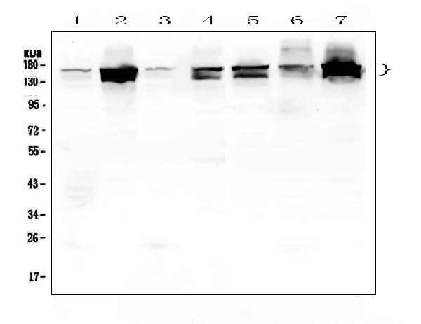 Figure 1. Western blot analysis of INPPL1  using anti-INPPL1  antibody (A01790). <br>Electrophoresis was performed on a 5-20% SDS-PAGE gel at 70V (Stacking gel) / 90V (Resolving gel) for 2-3 hours. The sample well of each lane was loaded with 50ug of sample under reducing conditions. <br>Lane 1: human placenta tissue lysates,<br>Lane 2: human Hela whole cell lysate,<br>Lane 3: human U20S whole cell lysate,<br>Lane 4: human PC-3 whole cell lysate,<br>Lane 5: human Caco-2 whole cell lysate,<br>Lane 6: human A549 whole cell lysate,<br>Lane 7: human K562 whole cell lysate. <br>After Electrophoresis, proteins were transferred to a Nitrocellulose membrane at 150mA for 50-90 minutes. Blocked the membrane with 5% Non-fat Milk/ TBS for 1.5 hour at RT. The membrane was incubated with rabbit anti-INPPL1  antigen affinity purified polyclonal antibody (Catalog # A01790) at 0.5 μg/mL overnight at 4°C, then washed with TBS-0.1%Tween 3 times with 5 minutes each and probed with a goat anti-rabbit IgG-HRP secondary antibody at a dilution of 1:10000 for 1.5 hour at RT. The signal is developed using an Enhanced Chemiluminescent detection (ECL) kit (Catalog # EK1002) with Tanon 5200 system. A specific band was detected for INPPL1  at approximately 140-160KD. The expected band size for INPPL1  is at 138KD.