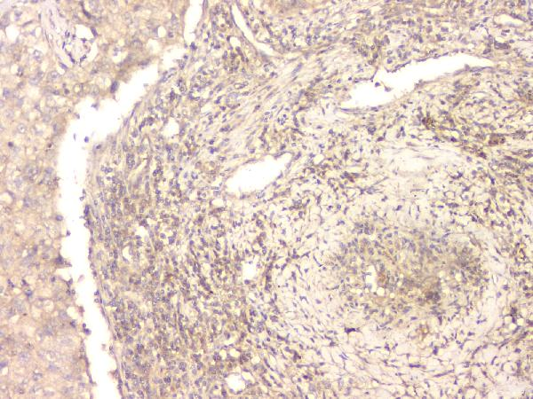 Figure 4. IHC analysis of BMP15 using anti-BMP15 antibody (A01842).<br>BMP15 was detected in paraffin-embedded section of human lung cancer tissue. Heat mediated antigen retrieval was performed in citrate buffer (pH6, epitope retrieval solution) for 20 mins. The tissue section was blocked with 10% goat serum. The tissue section was then incubated with 1μg/ml rabbit anti-BMP15 Antibody (A01842) overnight at 4°C. Biotinylated goat anti-rabbit IgG was used as secondary antibody and incubated for 30 minutes at 37°C. The tissue section was developed using Strepavidin-Biotin-Complex (SABC)(Catalog # SA1022) with DAB as the chromogen. <br>