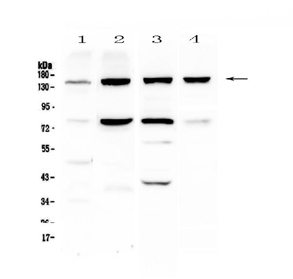 Figure 1. Western blot analysis of Integrin alpha 5 using anti-Integrin alpha 5 antibody (A01911).  <br>Electrophoresis was performed on a 5-20% SDS-PAGE gel at 70V (Stacking gel) / 90V (Resolving gel) for 2-3 hours. The sample well of each lane was loaded with 50ug of sample under reducing conditions.  <br>Lane 1: human Hela cell lysate,<br>Lane 2: human HepG2 cell lysate,<br>Lane 3: rat liver tissue lysate,<br>Lane 4: mouse liver tissue lysate.  <br>After Electrophoresis, proteins were transferred to a Nitrocellulose membrane at 150mA for 50-90 minutes. Blocked the membrane with 5% Non-fat Milk/ TBS for 1.5 hour at RT. The membrane was incubated with rabbit anti-Integrin alpha 5 antigen affinity purified polyclonal antibody (Catalog # A01911) at 0.5 μg/mL overnight at 4°C, then washed with TBS-0.1%Tween 3 times with 5 minutes each and probed with a goat anti-rabbit IgG-HRP secondary antibody at a dilution of 1:10000 for 1.5 hour at RT. The signal is developed using an Enhanced Chemiluminescent detection (ECL) kit (Catalog # EK1002) with Tanon 5200 system. A specific band was detected for Integrin alpha 5 at approximately 150KD. The expected band size for Integrin alpha 5 is at 114KD.