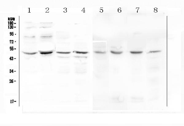 Figure 1. Western blot analysis of KCNN4 using anti-KCNN4 antibody (A01936-2).  <br>Electrophoresis was performed on a 5-20% SDS-PAGE gel at 70V (Stacking gel) / 90V (Resolving gel) for 2-3 hours. The sample well of each lane was loaded with 50ug of sample under reducing conditions.  <br>Lane 1: human Caco-2 whole cell lysate,<br>Lane 2: human PC-3 whole cell lysate,<br>Lane 3: human A549 whole cell lysate,<br>Lane 4: human Hela whole cell lysate,<br>Lane 5: rat stomach tissue lysates,<br>Lane 6: rat testis tissue lysates,<br>Lane 7: mouse testis tissue lysates,<br>Lane 8: mouse liver tissue lysates.  <br>After Electrophoresis, proteins were transferred to a Nitrocellulose membrane at 150mA for 50-90 minutes. Blocked the membrane with 5% Non-fat Milk/ TBS for 1.5 hour at RT. The membrane was incubated with rabbit anti-KCNN4 antigen affinity purified polyclonal antibody (Catalog # A01936-2) at 0.5 μg/mL overnight at 4°C, then washed with TBS-0.1%Tween 3 times with 5 minutes each and probed with a goat anti-rabbit IgG-HRP secondary antibody at a dilution of 1:10000 for 1.5 hour at RT. The signal is developed using an Enhanced Chemiluminescent detection (ECL) kit (Catalog # EK1002) with Tanon 5200 system. A specific band was detected for KCNN4 at approximately 48KD. The expected band size for KCNN4 is at 48KD.