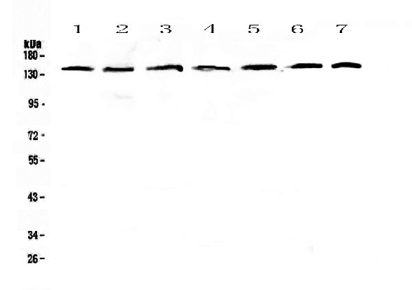 Figure 1. Western blot analysis of PERK using anti-PERK antibody (A01992-2).  <br>Electrophoresis was performed on a 5-20% SDS-PAGE gel at 70V (Stacking gel) / 90V (Resolving gel) for 2-3 hours. The sample well of each lane was loaded with 50ug of sample under reducing conditions.  <br>Lane 1: human Hela whole cell lysates,<br>Lane 2: human COLO-320 whole cell lysates,<br>Lane 3: human A549 whole cell lysates,<br>Lane 4: human SK-OV-3 whole cell lysates,<br>Lane 5: Human A431 whole cell lysates,<br>Lane 6: rat brain tissue lysates,<br>Lane 7: mouse brain tissue lysates.  <br>After Electrophoresis, proteins were transferred to a Nitrocellulose membrane at 150mA for 50-90 minutes. Blocked the membrane with 5% Non-fat Milk/ TBS for 1.5 hour at RT. The membrane was incubated with rabbit anti-PERK antigen affinity purified polyclonal antibody (Catalog # A01992-2) at 0.5 μg/mL overnight at 4°C, then washed with TBS-0.1%Tween 3 times with 5 minutes each and probed with a goat anti-rabbit IgG-HRP secondary antibody at a dilution of 1:10000 for 1.5 hour at RT. The signal is developed using an Enhanced Chemiluminescent detection (ECL) kit (Catalog # EK1002) with Tanon 5200 system. A specific band was detected for PERK at approximately 140KD. The expected band size for PERK is at 125KD.
